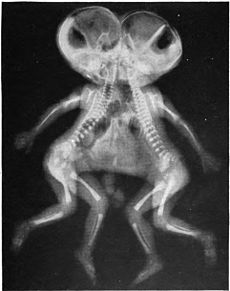 Conjoined_X_ray